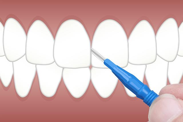 diferenças entre periodontite e gengivite