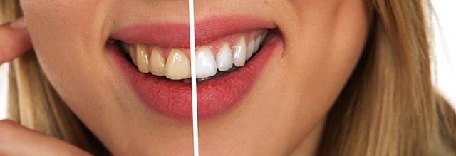 higiene bucal e clareamento dental